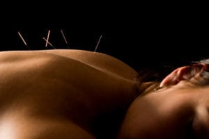 Acupuncture needles on woman back